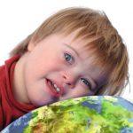 Cara Menghadapi Anak Down Syndrome