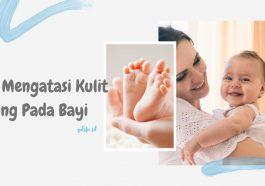 Mengatasi Kulit Kering Pada Bayi