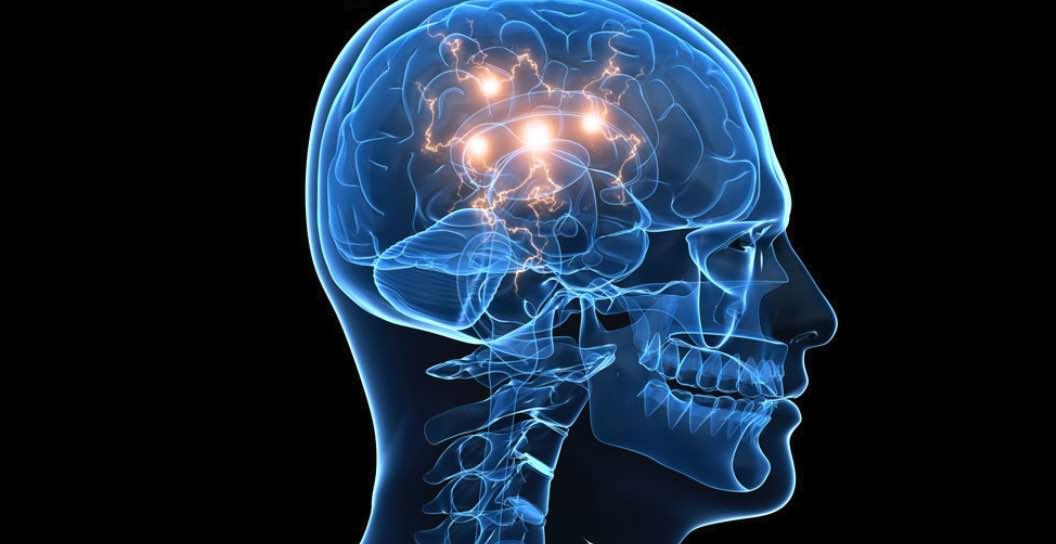 Puasa Membantu Meningkatkan Fungsi Otak